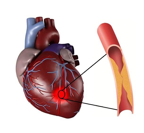 førstehjelp ved hjerteinfarkt
